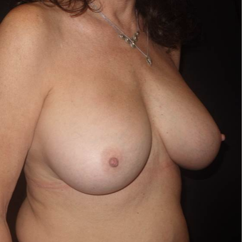 55-64 year old woman treated with Breast Implant Removal after 3458131