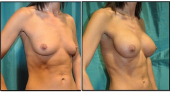 Breast Augmentation Silicone before 1017143