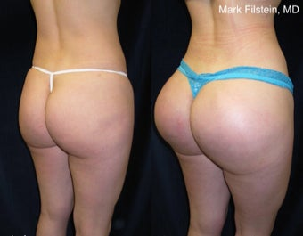 25-34 year old woman treated with Butt Implants before 3103095