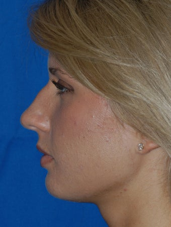 Refinement Rhinoplasty 321830