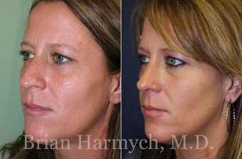 39 year-old female before and 9 months after Rhinoplasty before 3447133