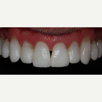 45-54 year old man treated with Dental Bonding
