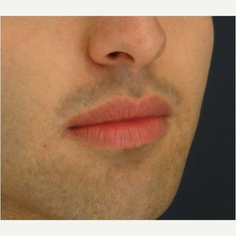 18-24 year old man treated with Lip Augmentation before 2551822