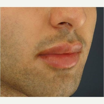 18-24 year old man treated with Lip Augmentation after 2551822