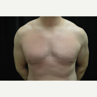 35-44 year old man treated with Male Breast Reduction after 3181905
