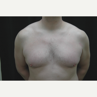 35-44 year old man treated with Male Breast Reduction before 3181905