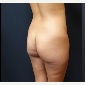 25-34 year old woman treated with Butt Augmentation before 3731684