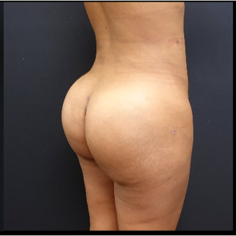 25-34 year old woman treated with Butt Augmentation after 3731684