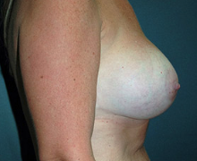 Breast Implants after 3545004