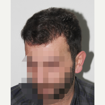 35-44 year old man treated with Hair Transplant after 3178871