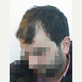 35-44 year old man treated with Hair Transplant before 3178871