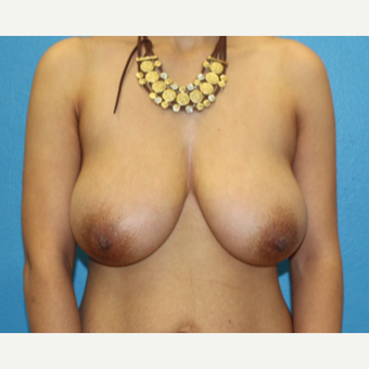 25-34 year old woman treated with Breast Reduction before 3091333