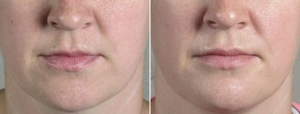 35 Year Old Female Lip Enhancement