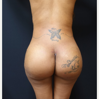 25-34 year old woman treated with 712cc Implants and Fat Transfer for her Butt Augmentation after 3129091