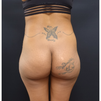 25-34 year old woman treated with 712cc Implants and Fat Transfer for her Butt Augmentation before 3129091