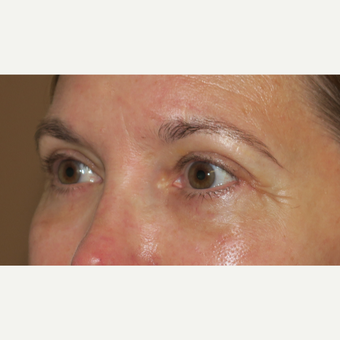 45-54 year old woman treated with Eyelid Surgery after 3388928