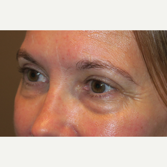 45-54 year old woman treated with Eyelid Surgery before 3388928