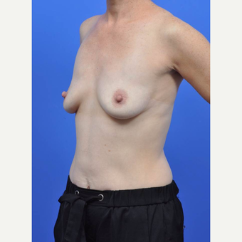 35-44 year old woman treated with Breast Augmentation before 3091332