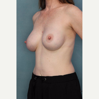 35-44 year old woman treated with Breast Augmentation after 3091332
