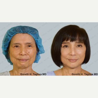 55-64 yo woman treated with Facelift, Endoscopic Browlift, Chin Augmentation, Fat Transfer, Picosure before 3163043