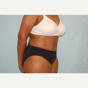 35-44 year old woman treated with Tummy Tuck after 3666265