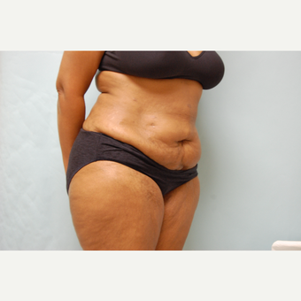 35-44 year old woman treated with Tummy Tuck before 3666265