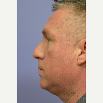 35-44 year old man treated with Rhinoplasty before 3391936