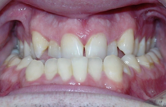 Severe Underbite Treated with Braces and Orthognathic Surgery 1932379