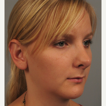 18-24 year old woman treated with Chin Surgery and Rhinoplasty after 3344187