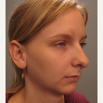 18-24 year old woman treated with Chin Surgery and Rhinoplasty before 3344187