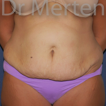 Tummy Tuck before 3599539