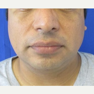 Chin Liposuction after 3141667