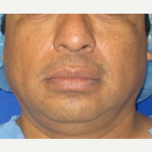 Chin Liposuction before 3141667