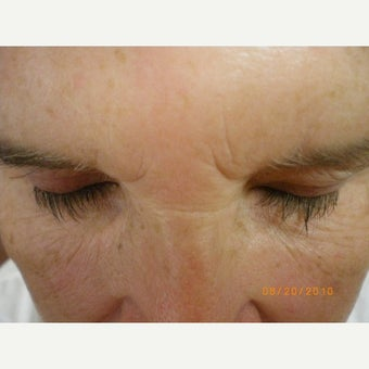 55-64 year old woman treated with Latisse after 1757773