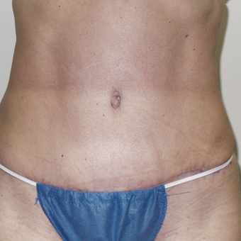 35-44 year old woman treated with Tummy Tuck after 3185156