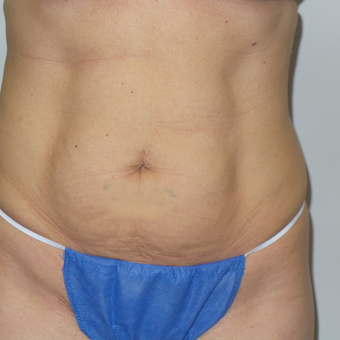 35-44 year old woman treated with Tummy Tuck before 3185156