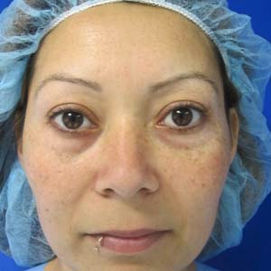 Eyelid Surgery before 3164340