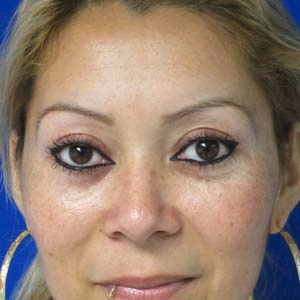 Eyelid Surgery after 3164340