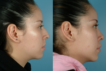 Revision Rhinoplasty before 302686