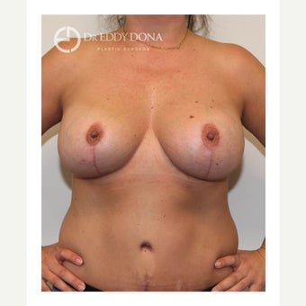 45-54 year old woman treated with Breast Lift with Implants after 1617909