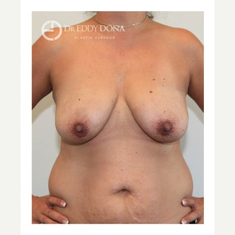 45-54 year old woman treated with Breast Lift with Implants before 1617909