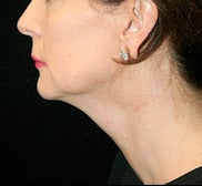 Neck Lift with Lower Face Lift before 1258901