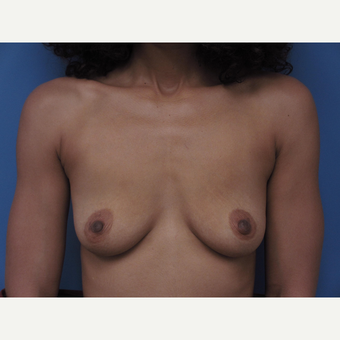 35-44 year old woman treated with Breast Augmentation before 3657705