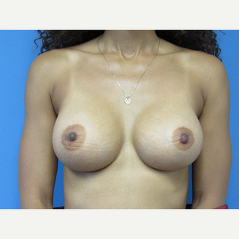 35-44 year old woman treated with Breast Augmentation after 3657705