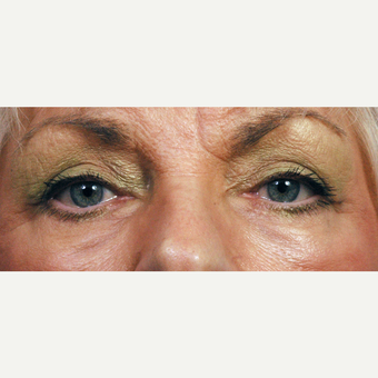 75 and up year old woman treated with Eyelid Surgery after 3761679