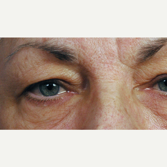75 and up year old woman treated with Eyelid Surgery before 3761679