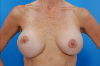 Breast Augmentation - Fold Malposition Correction before 1158590