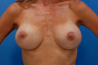 Breast Augmentation - Fold Malposition Correction