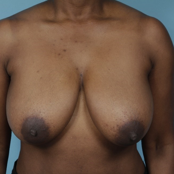45-54 year old woman treated with Breast Reduction before 3730040