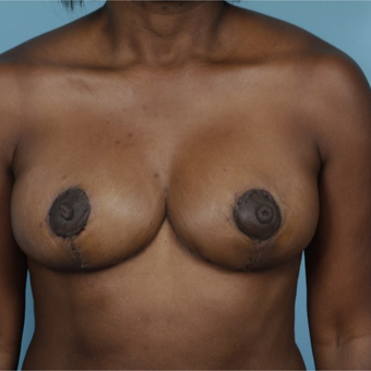 45-54 year old woman treated with Breast Reduction after 3730040